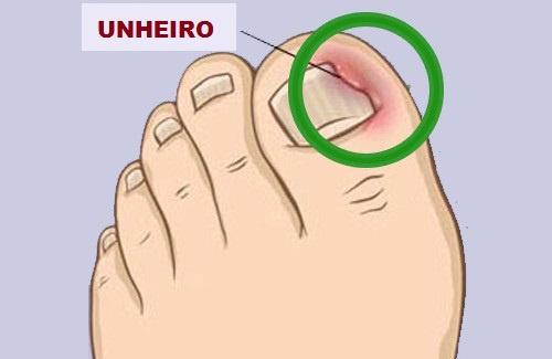 A dor de unhas encravadas e inflamadas !